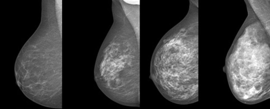 små förkalkningar i bröstet